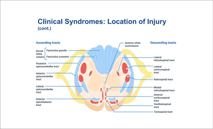spinal cord injury4