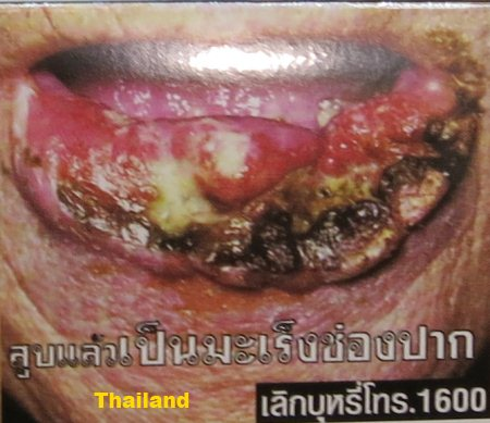 Cigarette Warning (Thailand): mouth cancer