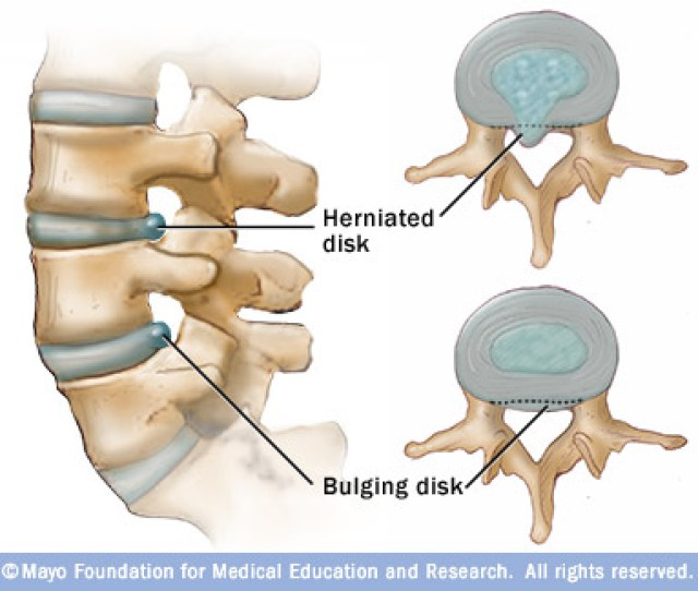 Non Surgical Spinal Decompression Can Help Heal Bulging And Herniated Discs Before Describing How This Spinal Decompression Treatment Helps Heal The