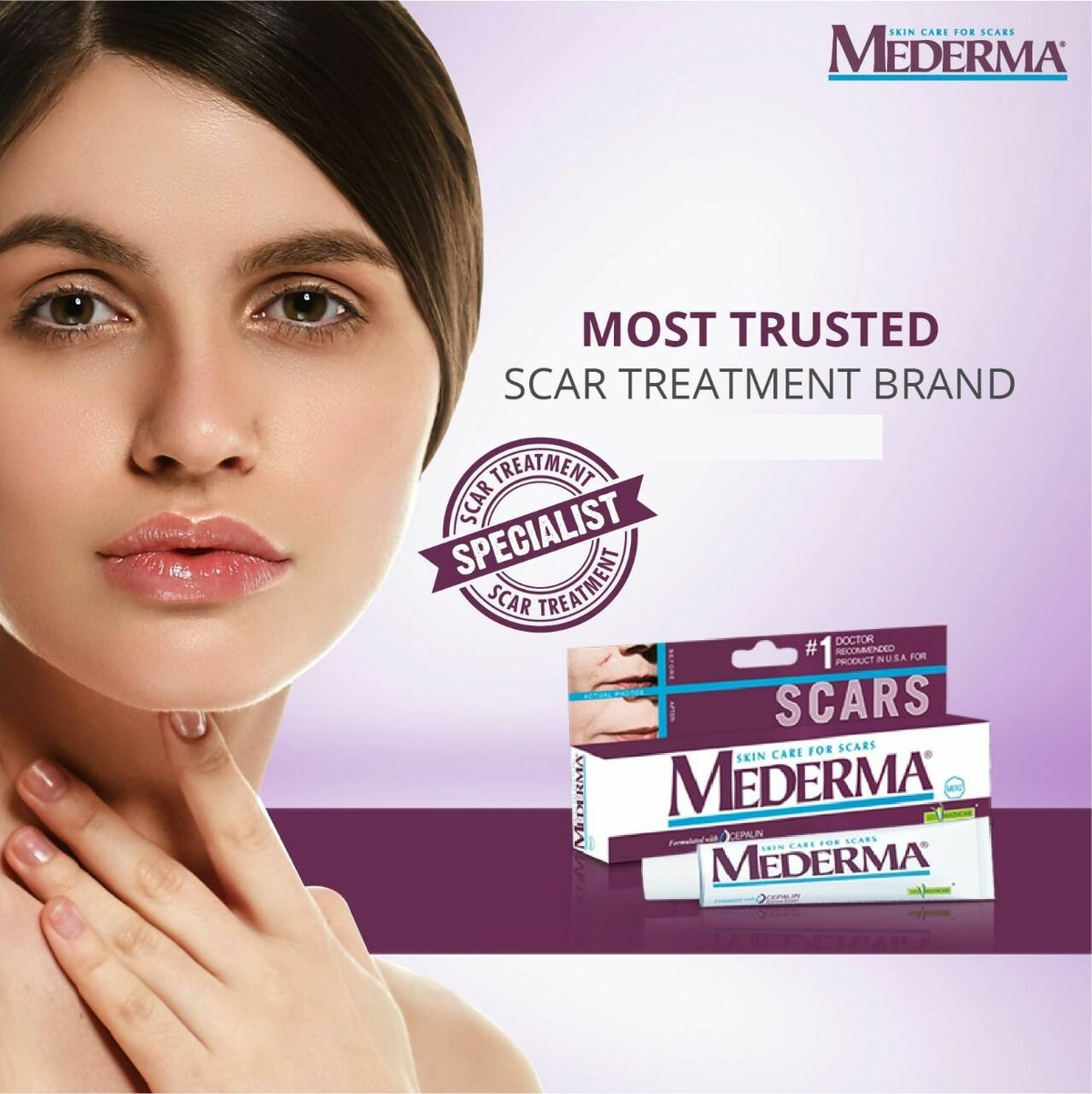 Mederma Price In Pakistan Mederma Gel Price In Pakistan Myteleshop