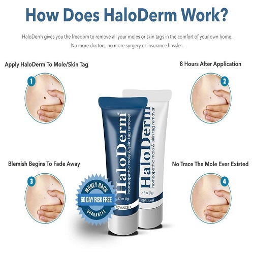 Haloderm Cream In Pakistan Lahore Karachi Islamabad Myteleshop