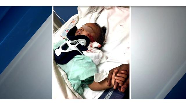 baby attacked by pitbull_1547520712682.PNG_67391949_ver1.0_640_360_1547552379726.jpg.jpg