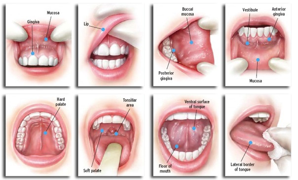 Oral Cancer Screening Albertville