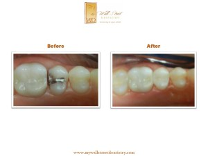Tooth Colored Fillings Albertville AL