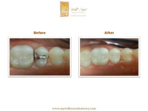 Tooth Colored Fillings Albertville AL