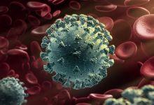 Photo of وزارة الصحة: 4 وفيات و125 إصابة جديدة بفيروس كورونا