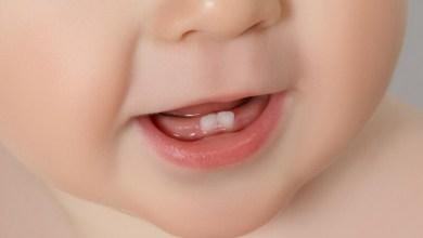 Photo of مرحلة التسنين عند الرضع وأعراضها.. وكيفية التعامل معها