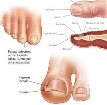 the truth about nail fungus