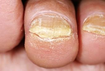 toenail fungi facts