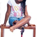 Meet The Young Girl Who Can Dance Ballet, Run And Kick Despite Being Born With Half Leg (Photo)