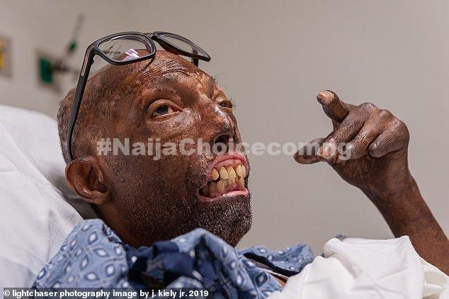First Black Man To Receive A Face Transplant After Waiting For 6 Years (Pics)