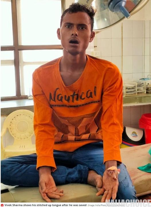 Indian Man Cuts Off His Tongue As Sacrifice To God To Prevent COVID-19 (Graphic Pix)