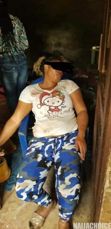 Man Attempts To Kill His Wife In Anambra  (Disturbing Photos)