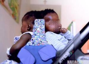 Twins conjoined at the head separated successfully in first-of-its-kind surgery (Photos)