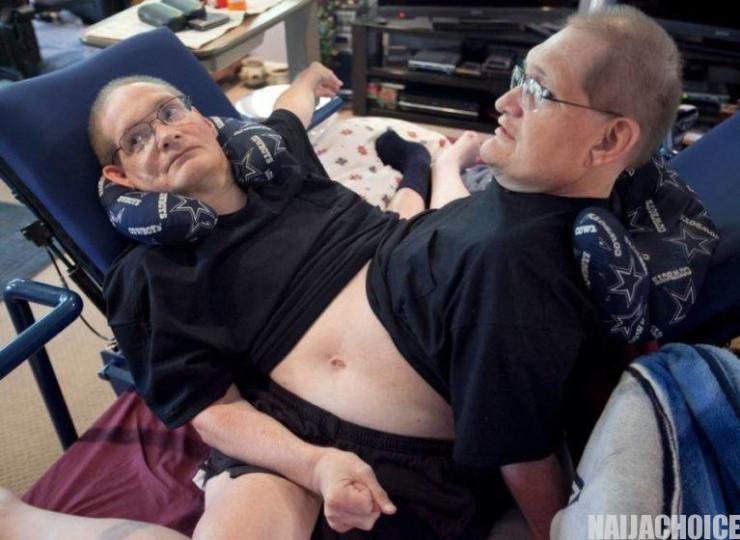 World's Longest-Living Conjoined Twins Die At 68 (Pictures)