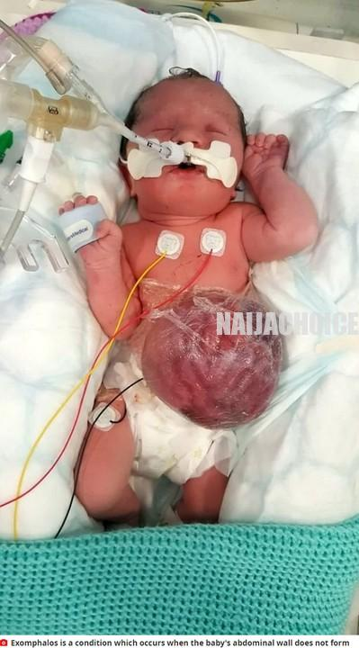 Little Girl Lives With Stomach, Liver & Bowel Outside Her Body In UK (Graphic Pix)