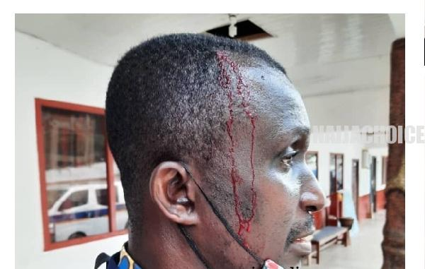 WASSCE: Ghanaian Students Break Invigilator's Head Over Strict Supervision (Graphic)