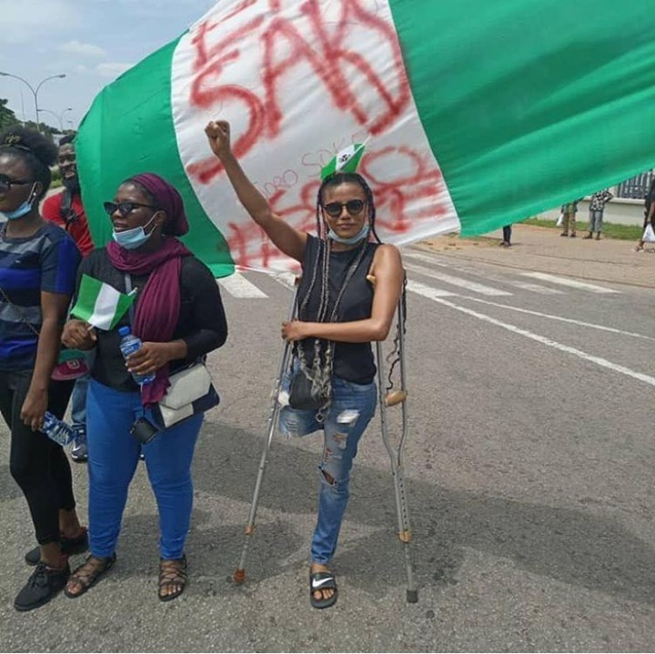 EndSARS Protesters Raise Funds To Buy A Protester Prosthetic Leg (Photos)