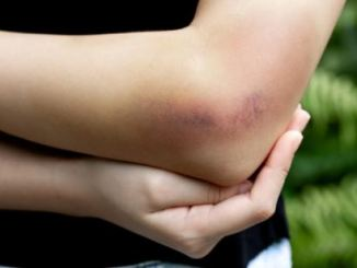 5 possible causes of easy & frequent bruising
