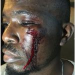 Man cries for justice after being beaten blue and black by touts in his neighborhood.