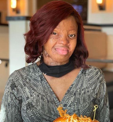 PHOTOS: Sosoliso Crash Survivor, Kechi Okwuchi Shares her Tremendous Progress 14 years later