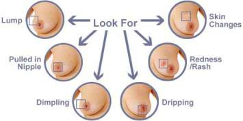 IMPORTANT MESSAGE FOR WOMEN ABOUT BREAST LUMPS AND CANCER