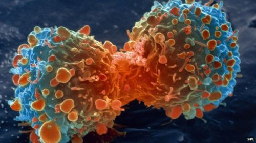 Cancer - A brief knowledge about the causes and cure of cancer