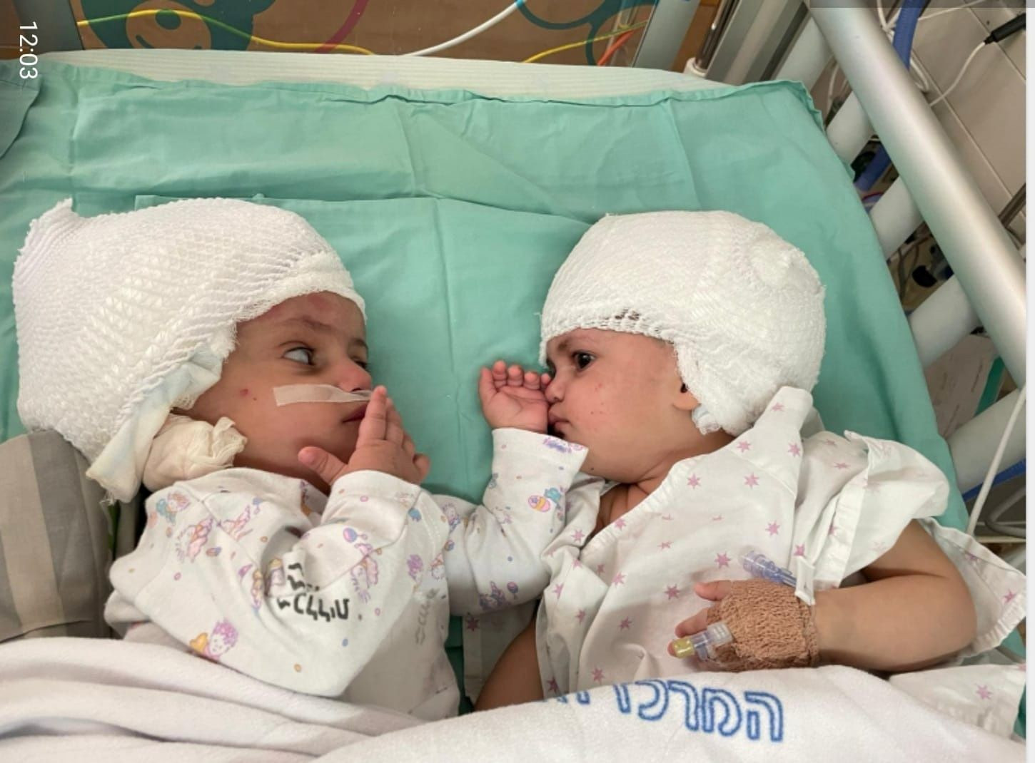 Israeli twins born conjoined back-to-back, finally see each other for the first time after surgery (photos)