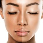 Skin-Lightening-Image1