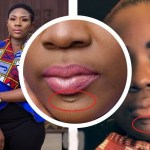 Emelia Brobbey Shares A Sad Story On How She Got This Scar On Her Chin And It's Teary