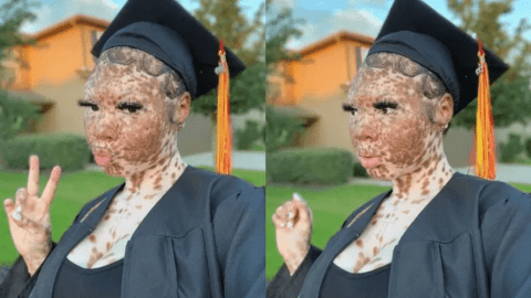 Instagram Sensation With Unique Skin Colour, Princess Micah, Shares Stunning Graduation Photos