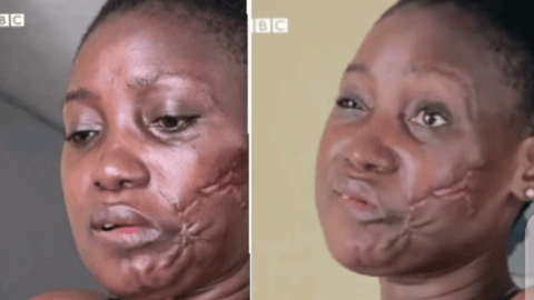 My Boyfriend Who Is A Police Shot Me With His Pistol In My Mouth (Lady Narrates Her Story)