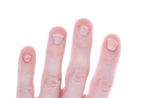 Nail S Like Acrylics Acetone Formaldehyde Can Irritate Techs And Their Clients From Overexposure