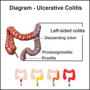 I Struggled With Ulcerative Colitis During Pregnancy | My