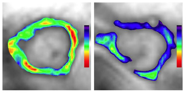 atherosclerosis in a mouse artery