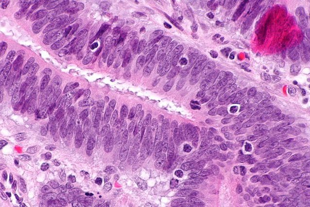 Cancro al seno in stato avanzato: cura per debellarlo completamente