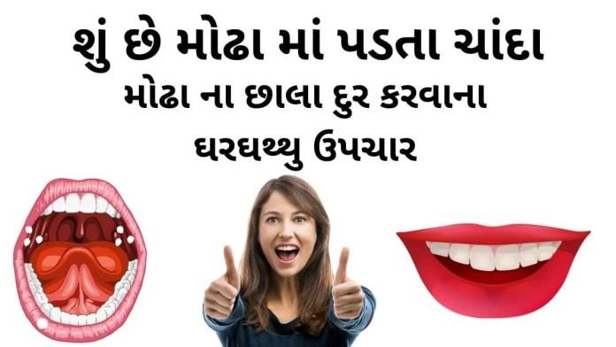 મોઢા ના છાલા દુર કરવાના ઘરઘથ્થુ ઉપચાર - મોઢા ના ચાંદા દૂર કરવાના ઘરઘથ્થુ ઉપચારો - mouth ulcer home remedies in gujarati - Modha na chanda na upay - modha ma chanda no ilaj gujarati.