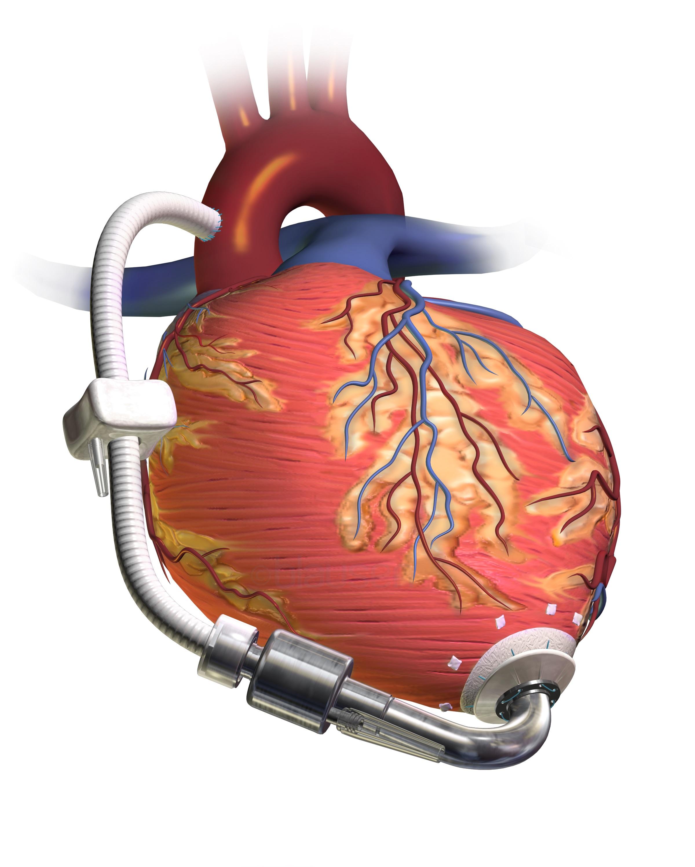 Cardiac Pump