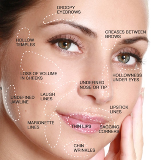 Liquid Facelift Frequently Asked Questions | Non-Surgical