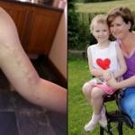 Шестилетней девочке ампутировали руку, через несколько часов получила ее назад