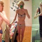 Шокирующее признание: Блоги анорексичек меня чуть не убили, я весила 35 килограмм