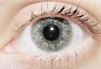 göz kuruluğu nasıl tedavi edilir
