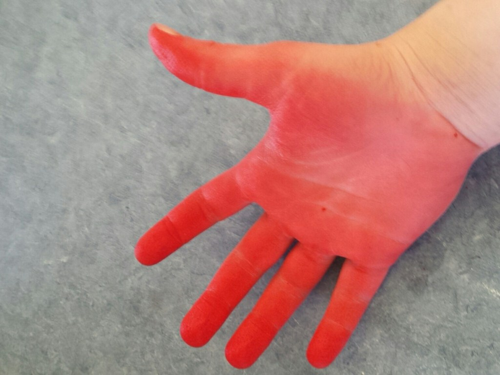 This is what happens when you dye with out proper gloves. Don't make the same dying mistakes I did. Click through to learn how to avoid the three mistakes I made
