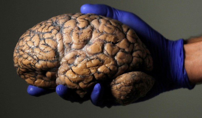 Brain Freezing Assisted Suicide Nectome National Review