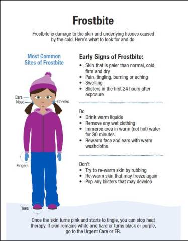 Frostbite: Symptoms, Treatment and Prevention