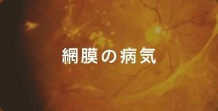 網膜の病気