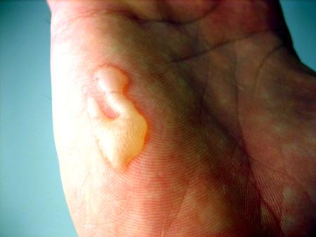my burnt hand