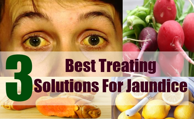 Best Treating Solutions For Jaundice Natural Home Remedies - Best home remedies for jaundice its causes and symptoms