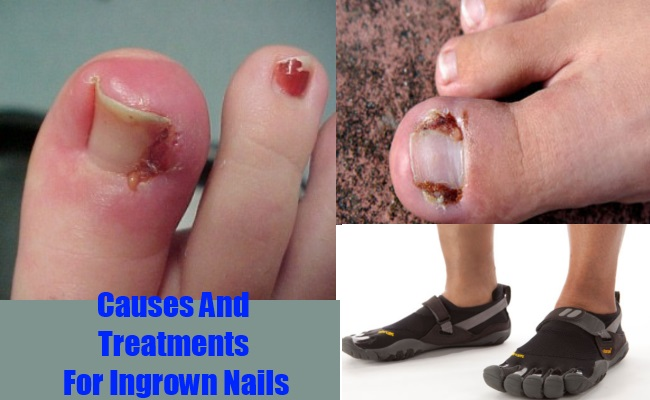 Causes And Treatments For Ingrown Nails