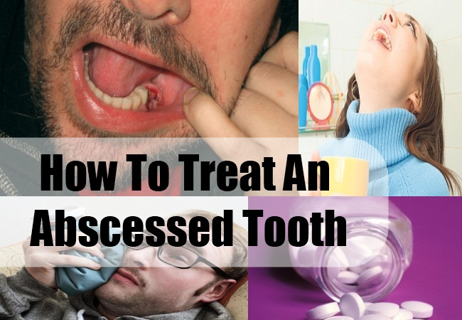 How To Treat An Abscessed Tooth